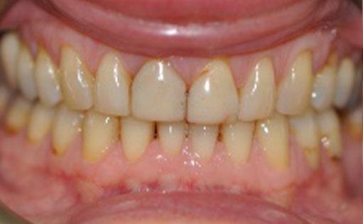Before - Bassett Dental & Aesthetics