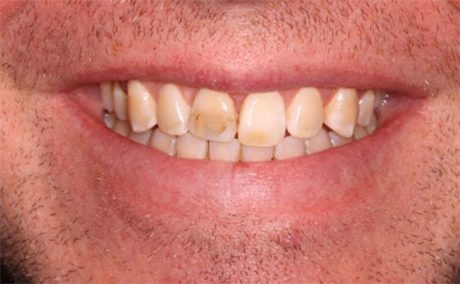 Before - Bassett Dental & Aesthetics