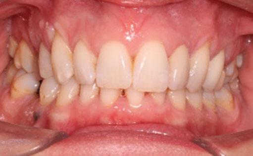 After - Bassett Dental & Aesthetics