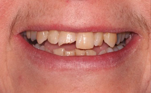 BassettDental - Before