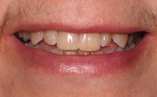 BassettDental - After