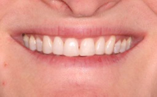 After - Bassett Dental & Aesthetics