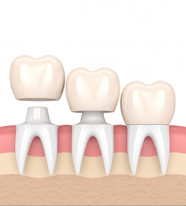 BassettDental - treatment
